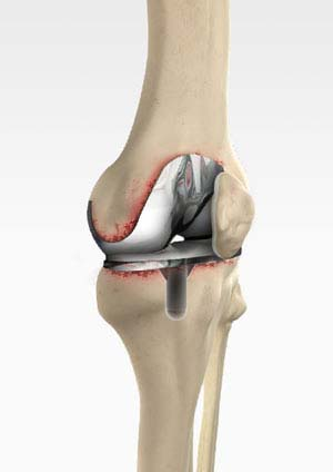 >Revision Knee Replacement